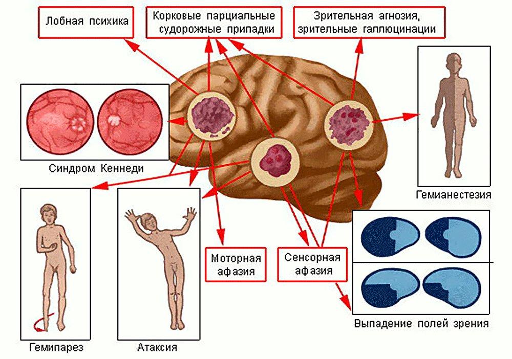 опухоль головного мозга операция в Москве