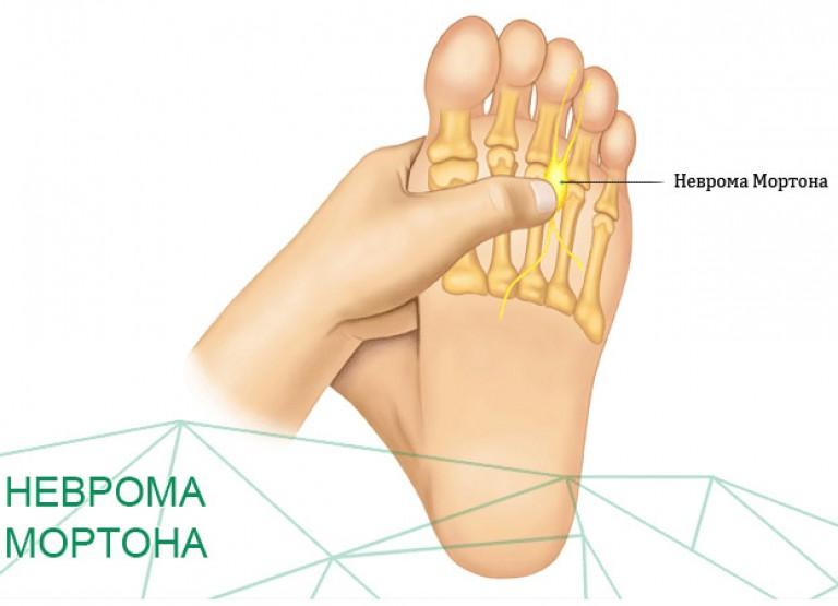 Неврома стопы (неврома Мортона): симптомы и лечение