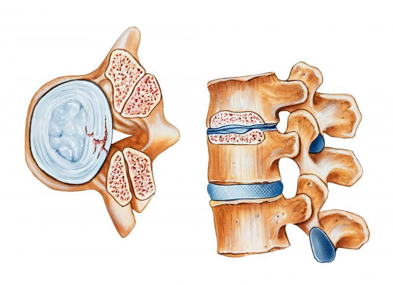 Лечение стеноза позвоночника в москве
