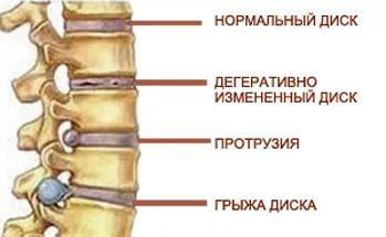 Лечение межпозвоночной грыжи в клинике Москвы по низкой цене