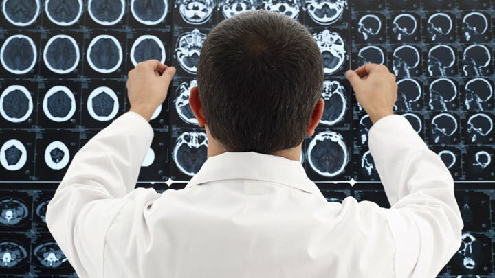 Чем и как вылечить гидроцефалию thumbnail