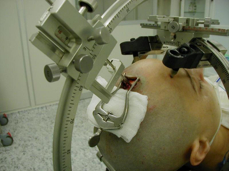 Операции на головном мозге