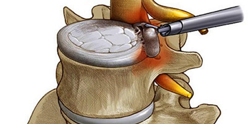 Эндоскопическое удаление межпозвоночной грыжи