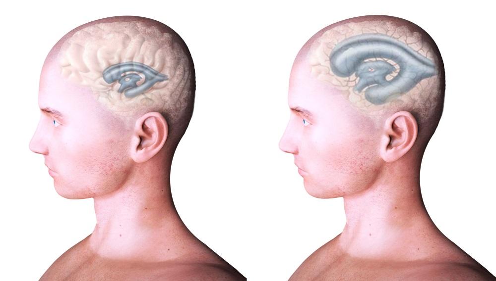 Заместительная гидроцефалия головного мозга: симптомы и диагностика. Лечение заместительной гидроцефалии в Москве